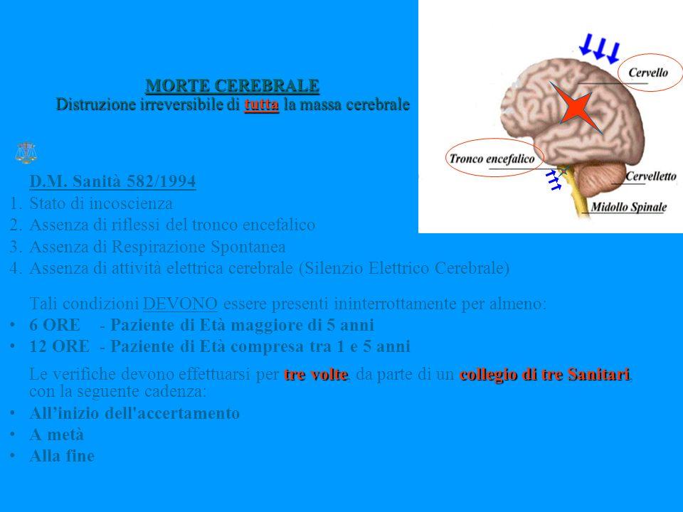 MORTE CEREBRALE Distruzione irreversibile di tutta la massa cerebrale