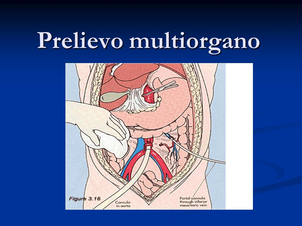Prelievo multiorgano