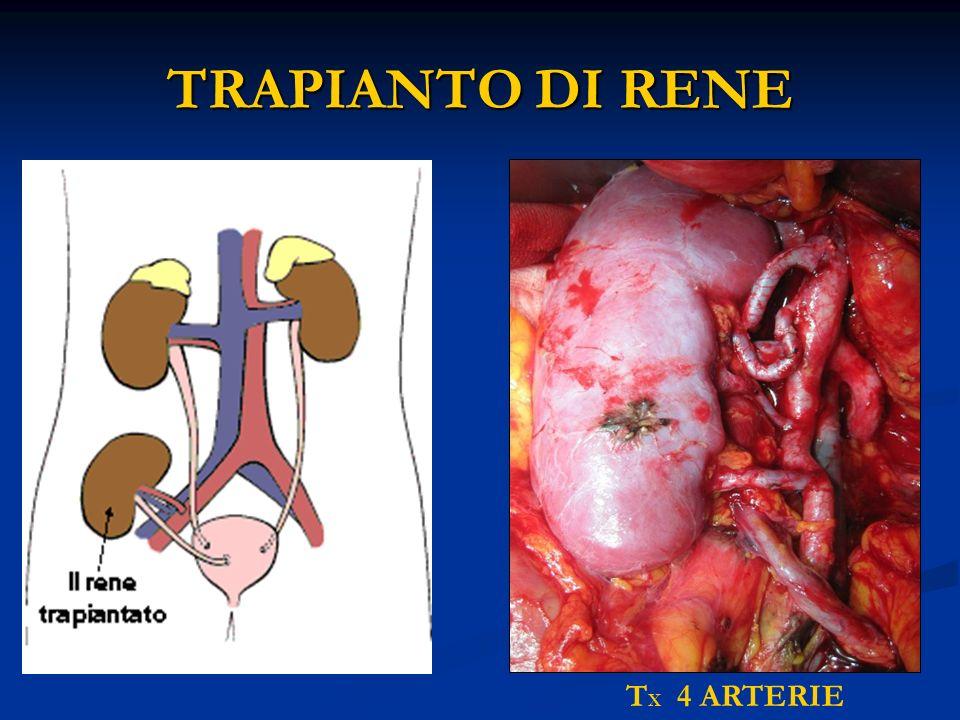TRAPIANTO DI RENE TX 4 ARTERIE