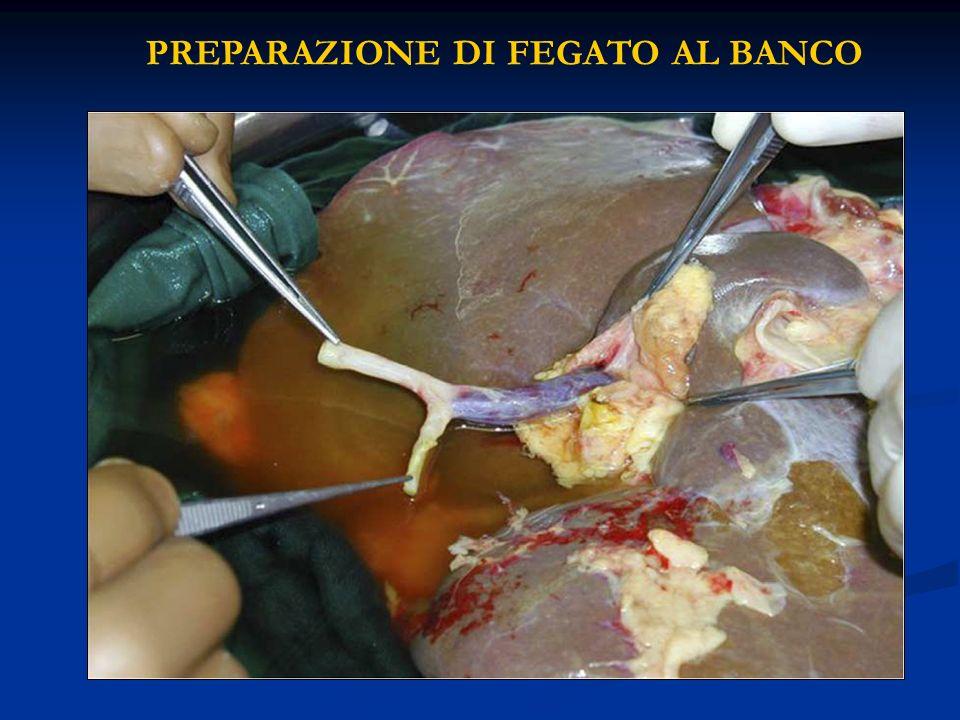 PREPARAZIONE DI FEGATO AL BANCO