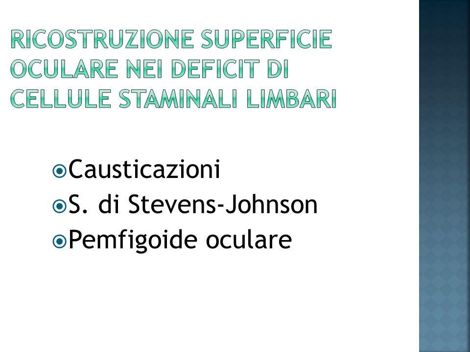 Causticazioni S. di Stevens-Johnson Pemfigoide oculare