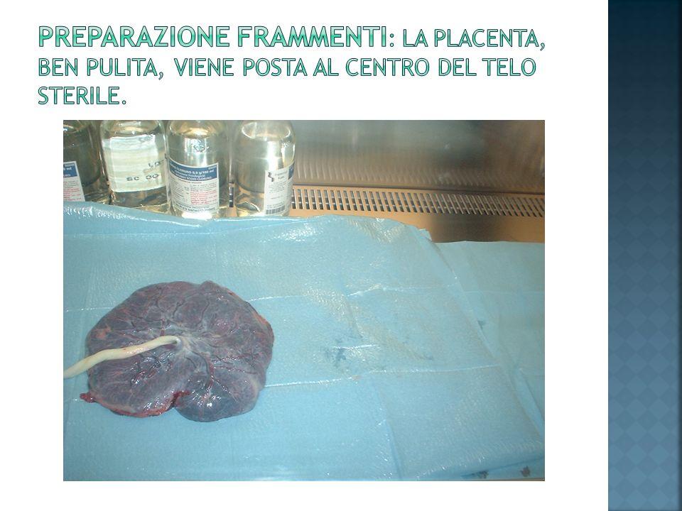 Preparazione frammenti: la placenta, ben pulita, viene posta al centro del telo sterile.