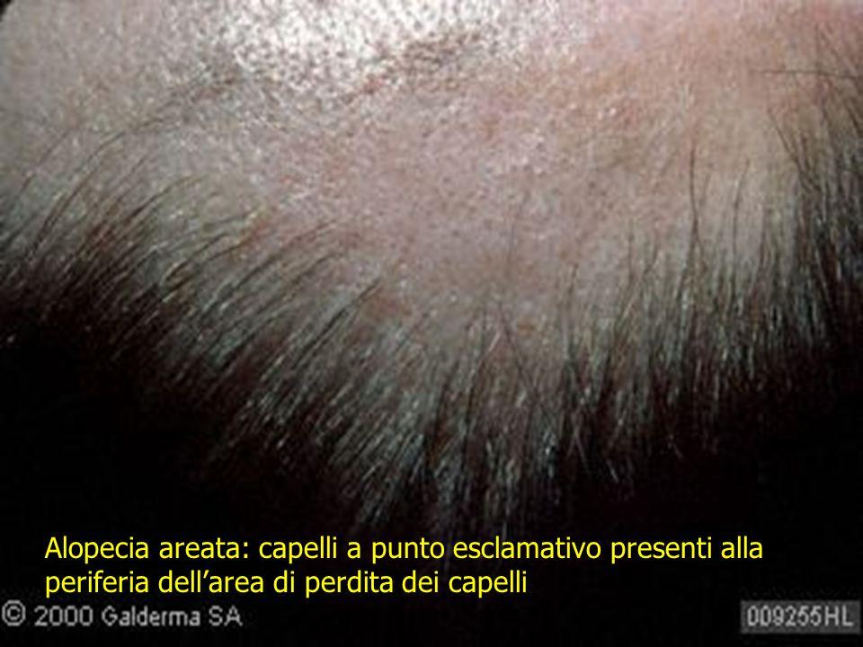 Alopecia areata: capelli a punto esclamativo presenti alla periferia dell'area di perdita dei capelli