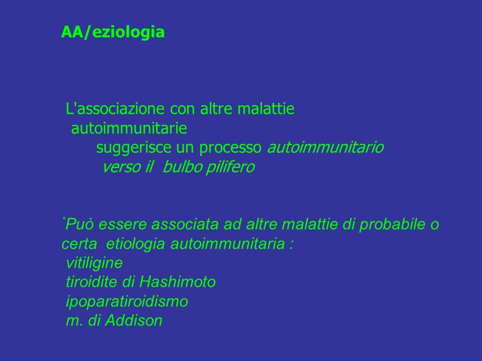 AA/eziologia L associazione con altre malattie autoimmunitarie suggerisce un processo autoimmunitario verso il bulbo pilifero *Può essere associata ad altre malattie di probabile o certa etiologia autoimmunitaria : vitiligine tiroidite di Hashimoto ipoparatiroidismo m.