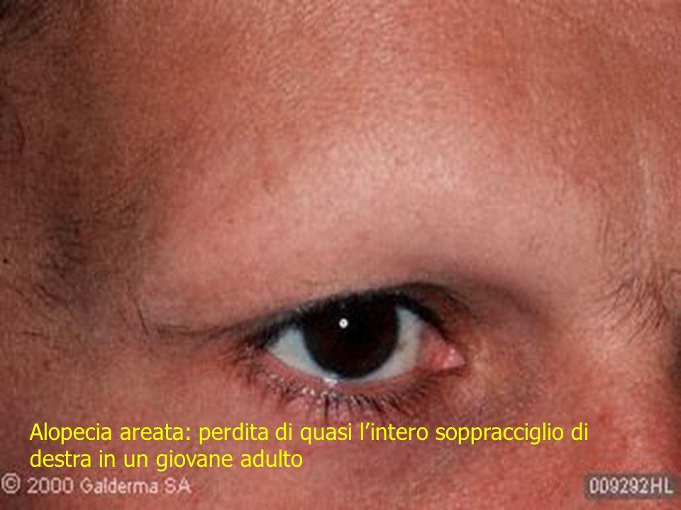 Alopecia areata: perdita di quasi l'intero soppracciglio di destra in un giovane adulto