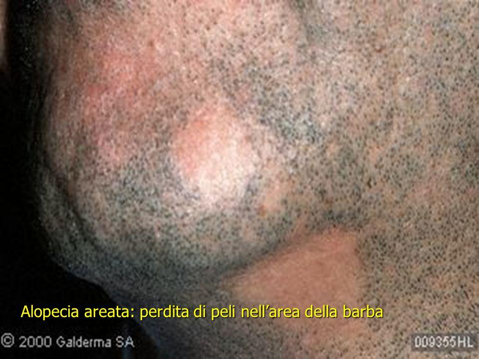 Alopecia areata: perdita di peli nell'area della barba