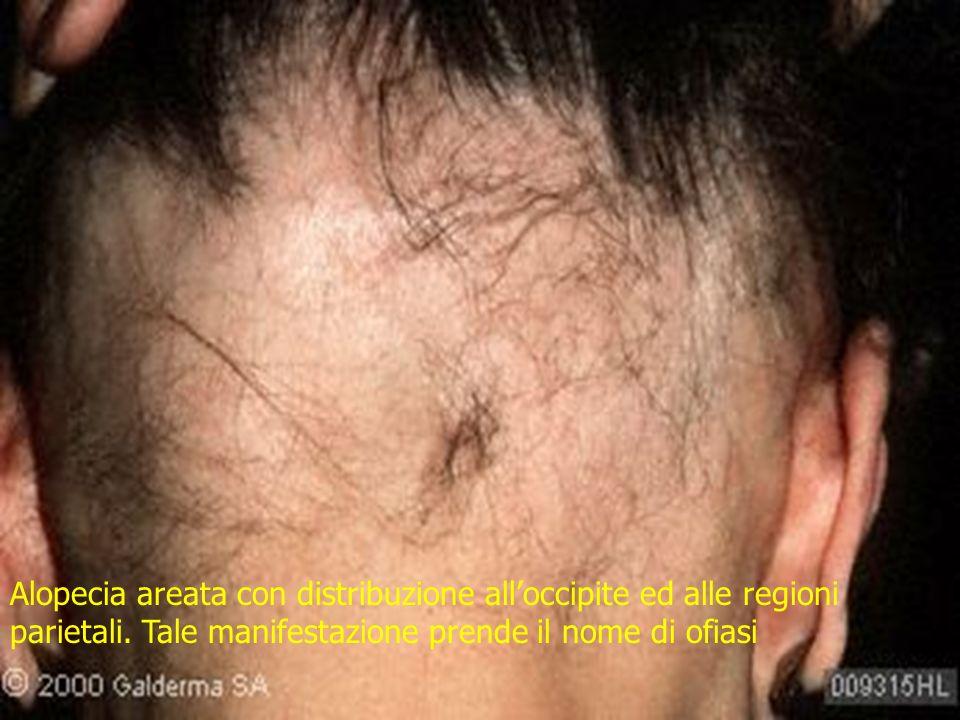 Alopecia areata con distribuzione all'occipite ed alle regioni parietali.