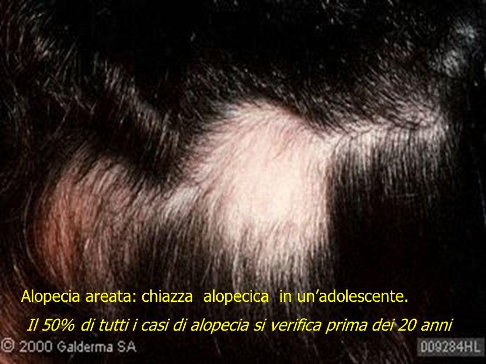 Alopecia areata: chiazza alopecica in un'adolescente.