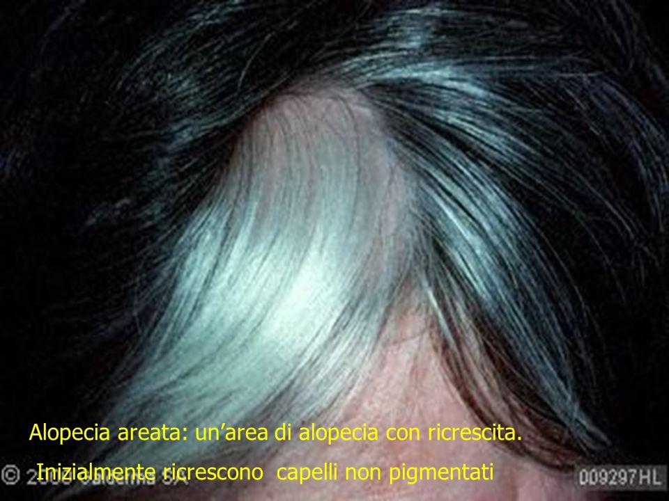 Alopecia areata: un'area di alopecia con ricrescita.