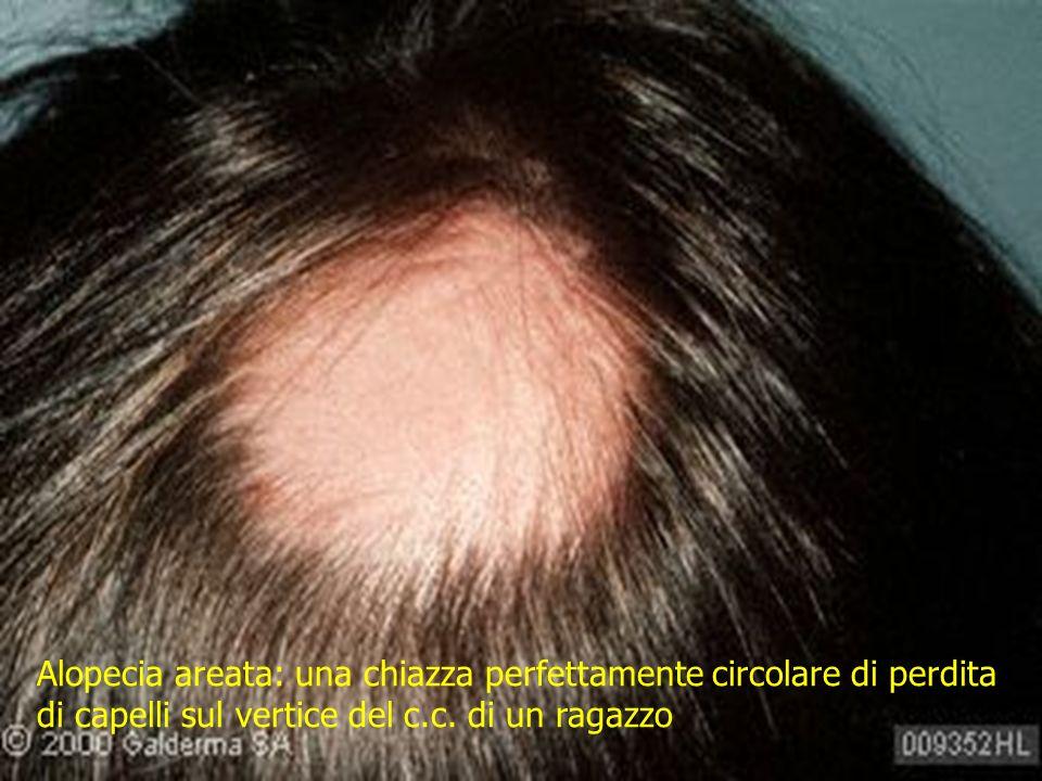 Alopecia areata: una chiazza perfettamente circolare di perdita di capelli sul vertice del c.c.