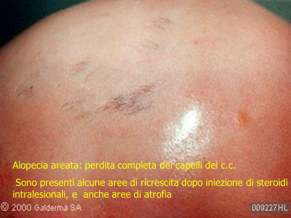 Alopecia areata: perdita completa dei capelli del c.c.