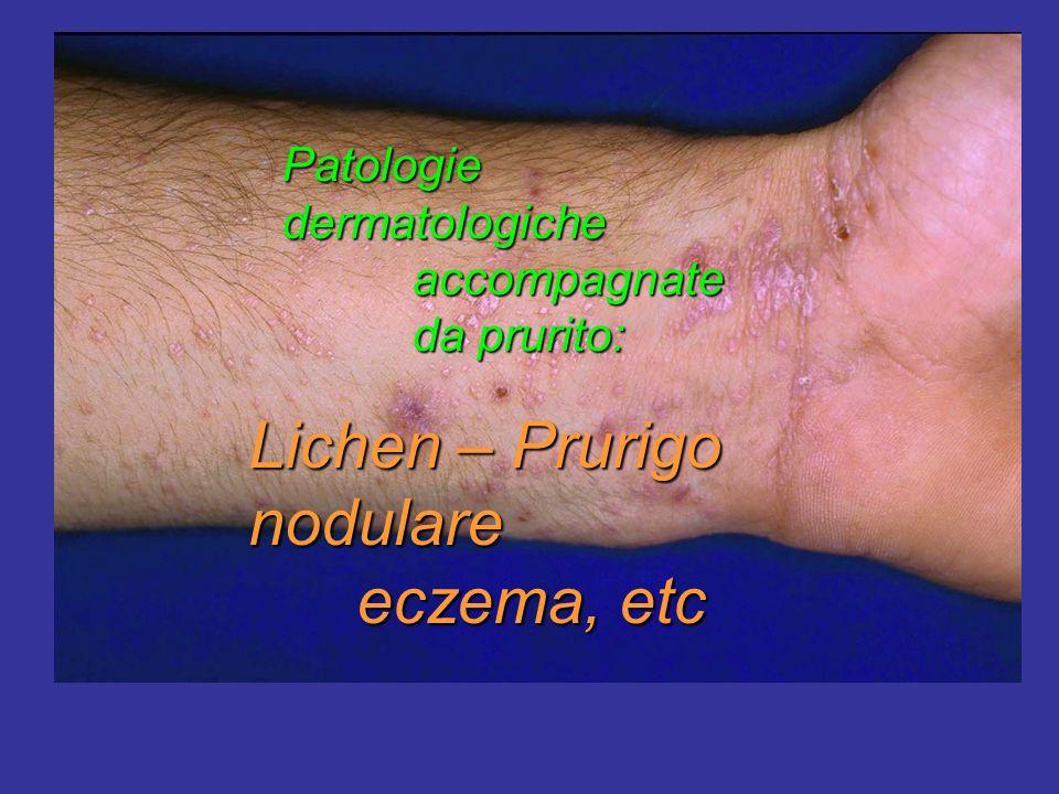 Lichen – Prurigo nodulare eczema, etc