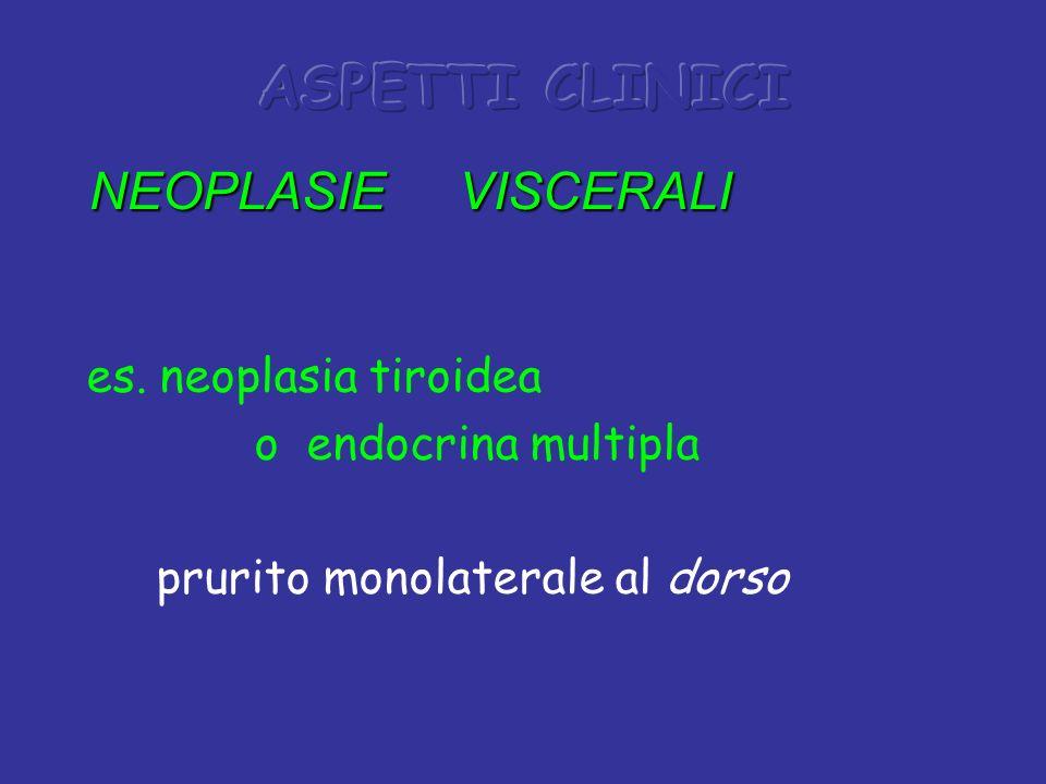 ASPETTI CLINICI NEOPLASIE VISCERALI es. neoplasia tiroidea