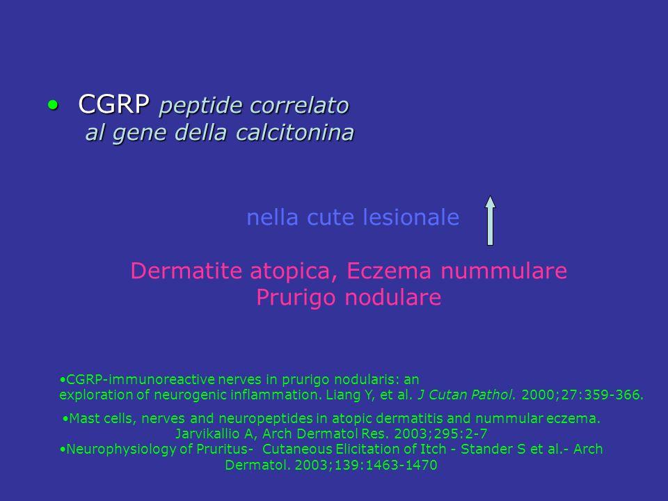 Dermatite atopica, Eczema nummulare