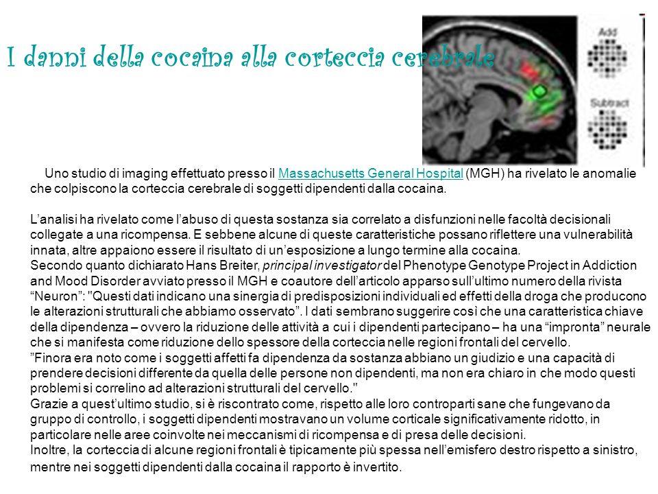 I danni della cocaina alla corteccia cerebrale
