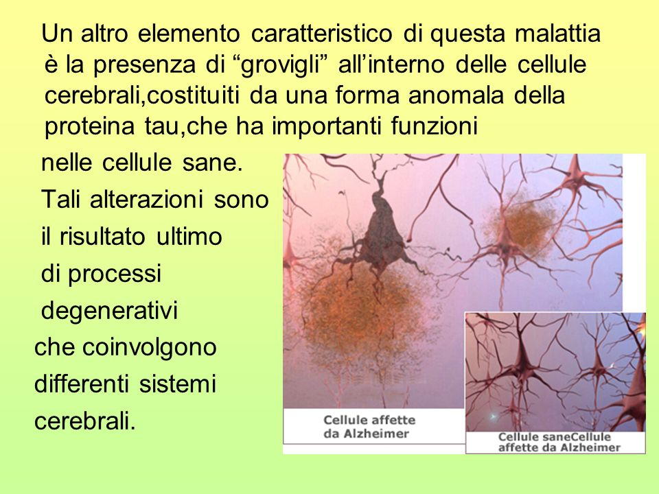 Un altro elemento caratteristico di questa malattia è la presenza di grovigli all'interno delle cellule cerebrali,costituiti da una forma anomala della proteina tau,che ha importanti funzioni