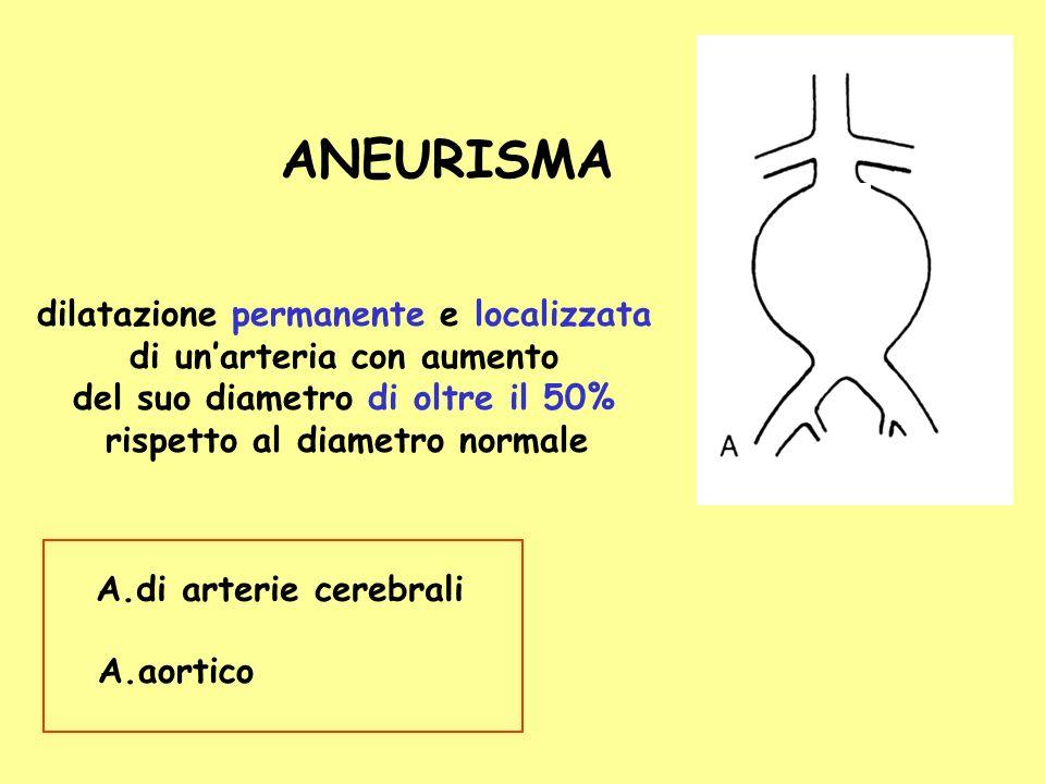 ANEURISMA dilatazione permanente e localizzata