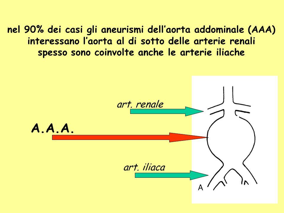 A.A.A. nel 90% dei casi gli aneurismi dell'aorta addominale (AAA)