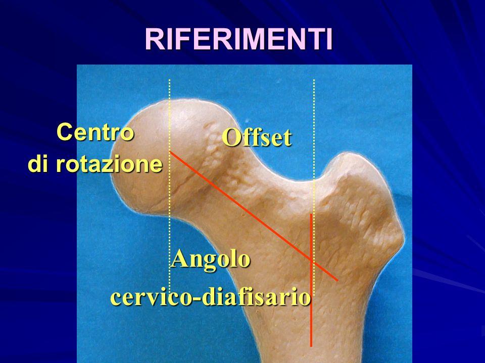 RIFERIMENTI Centro di rotazione Offset Angolo cervico-diafisario