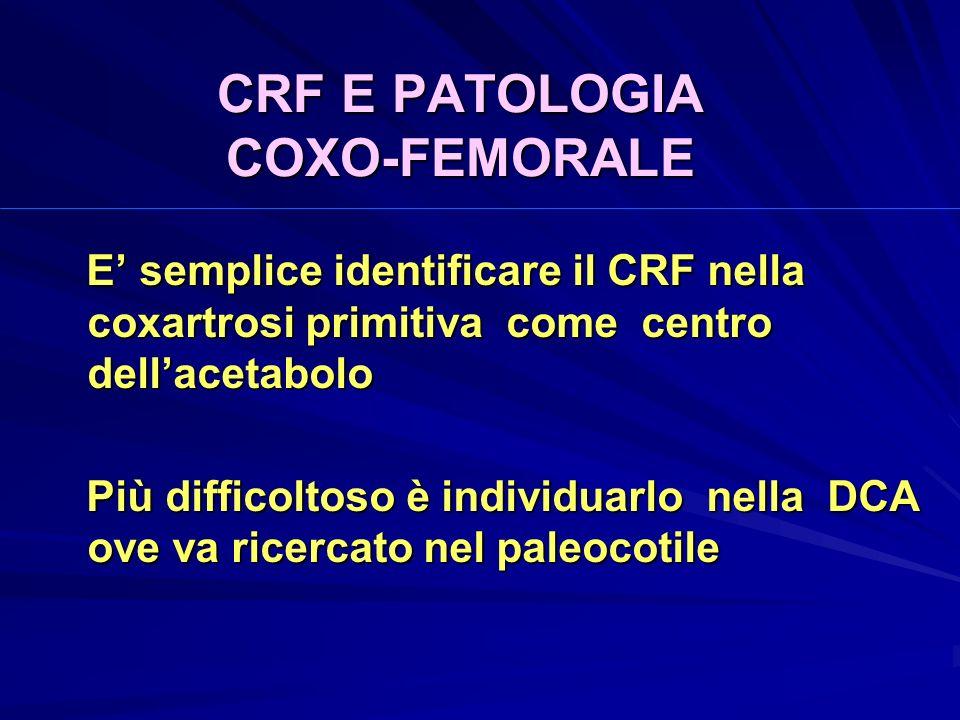 CRF E PATOLOGIA COXO-FEMORALE