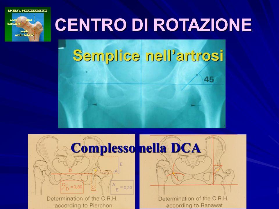 CENTRO DI ROTAZIONE Semplice nell'artrosi Complesso nella DCA