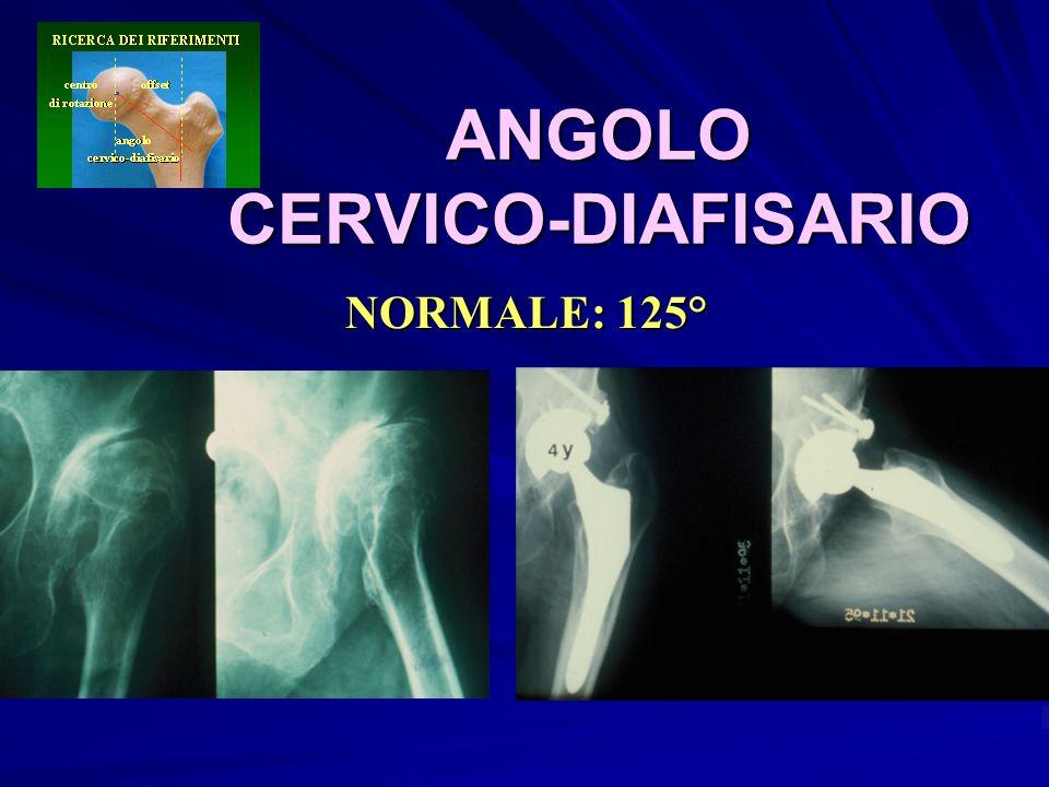 ANGOLO CERVICO-DIAFISARIO