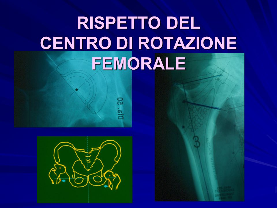 RISPETTO DEL CENTRO DI ROTAZIONE FEMORALE