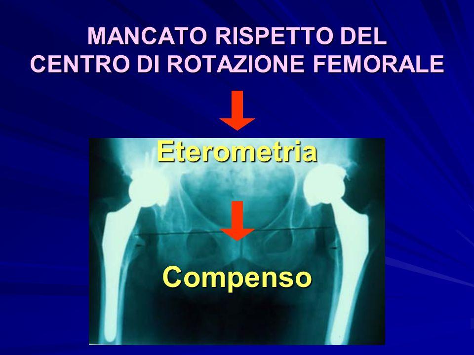 MANCATO RISPETTO DEL CENTRO DI ROTAZIONE FEMORALE