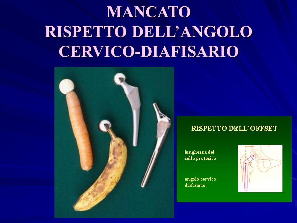 RISPETTO DELL'ANGOLO CERVICO-DIAFISARIO