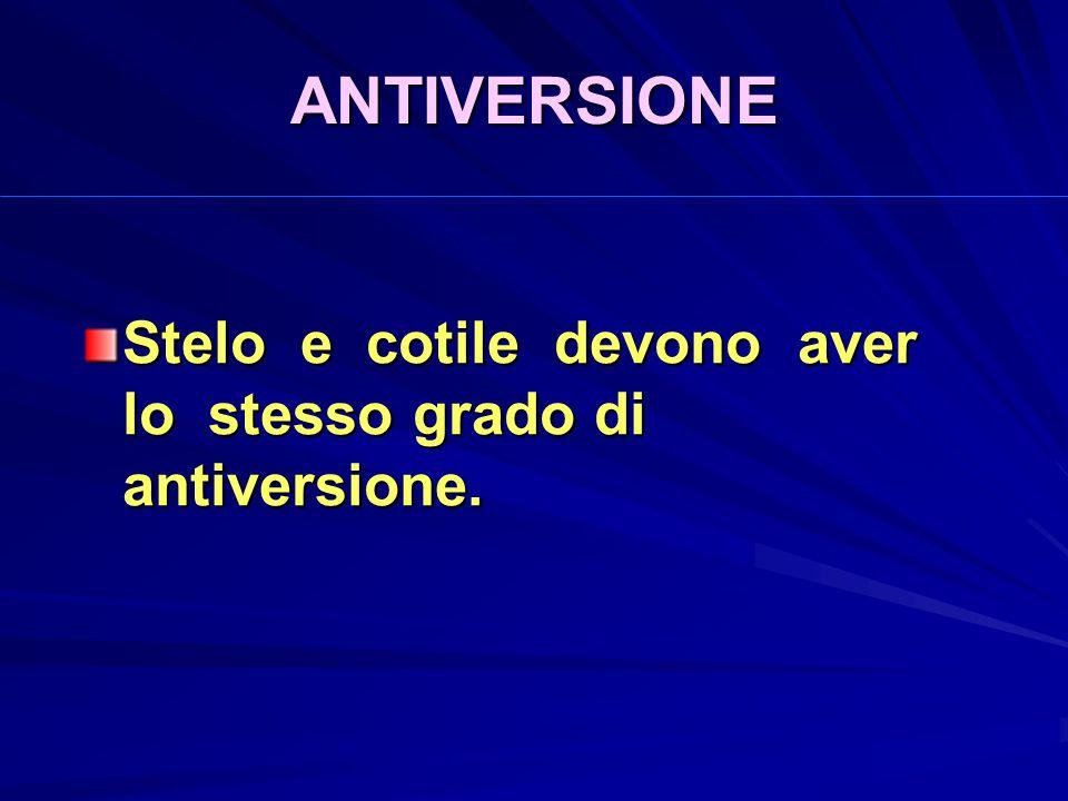 ANTIVERSIONE Stelo e cotile devono aver lo stesso grado di antiversione.