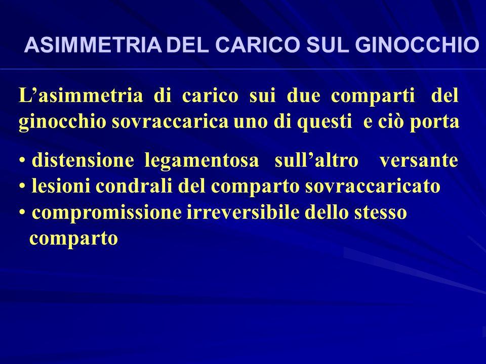 ASIMMETRIA DEL CARICO SUL GINOCCHIO