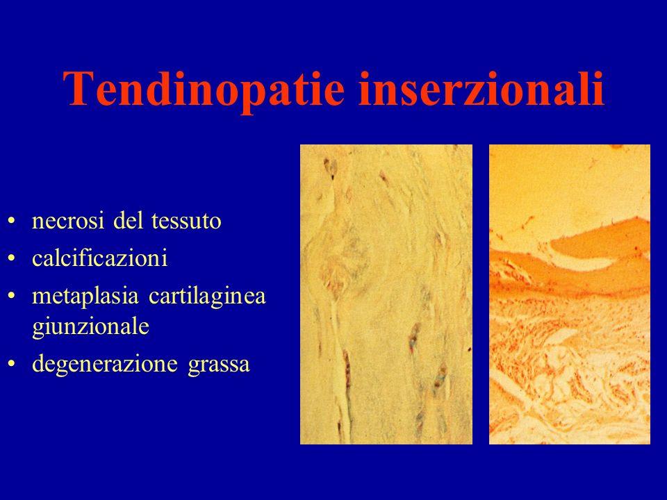 Tendinopatie inserzionali