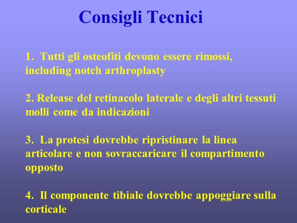 Consigli Tecnici 1. Tutti gli osteofiti devono essere rimossi, including notch arthroplasty 2.
