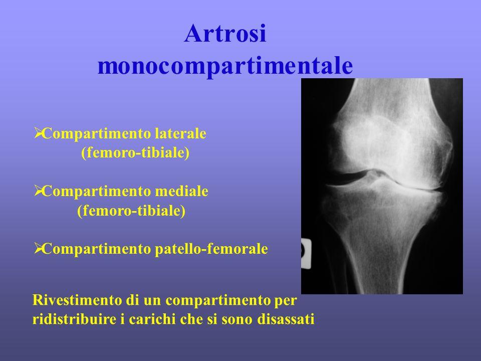 Artrosi monocompartimentale