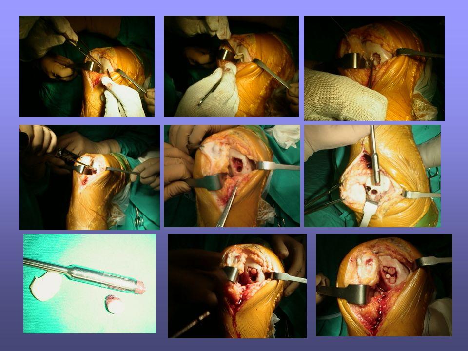 Tecnica chirurgica mosaicoplastica Di Cristo Antonio
