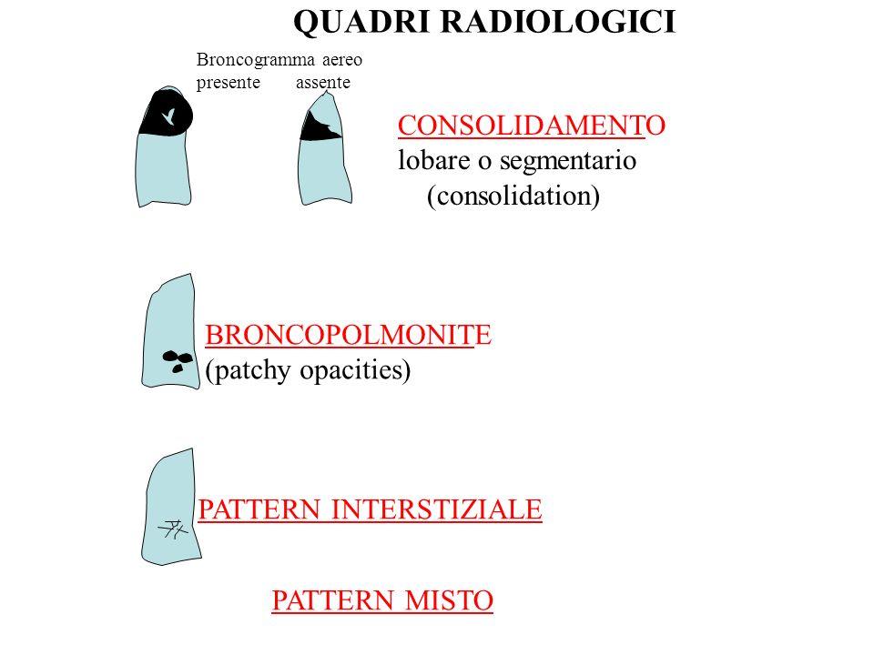 QUADRI RADIOLOGICI CONSOLIDAMENTO lobare o segmentario (consolidation)