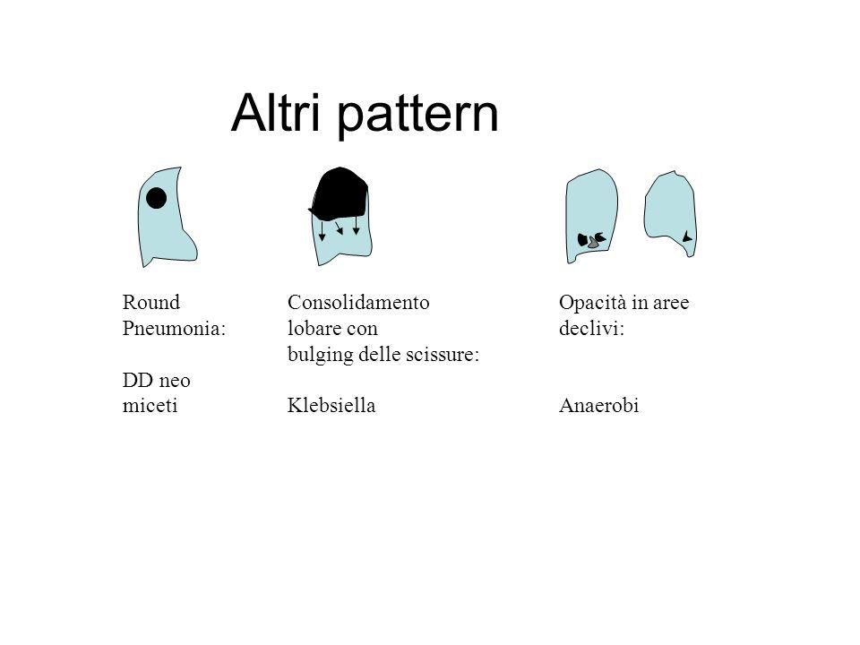 Altri pattern Round Pneumonia: DD neo miceti Consolidamento lobare con