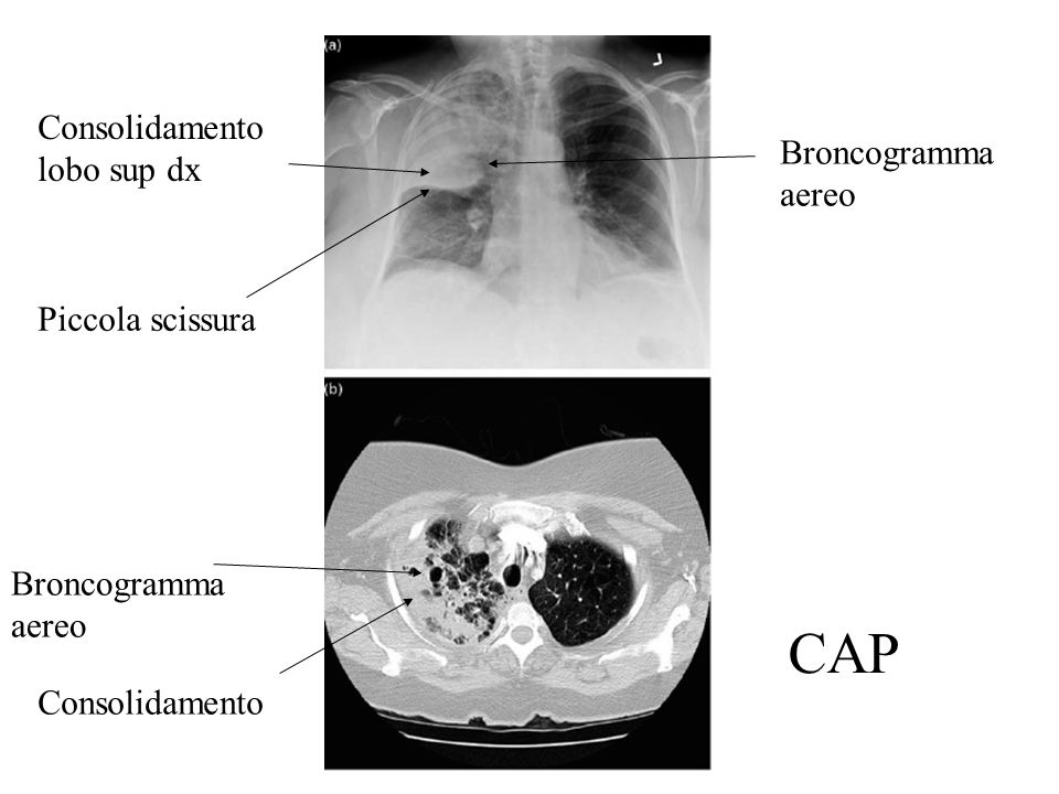 CAP Consolidamento lobo sup dx Broncogramma aereo Piccola scissura