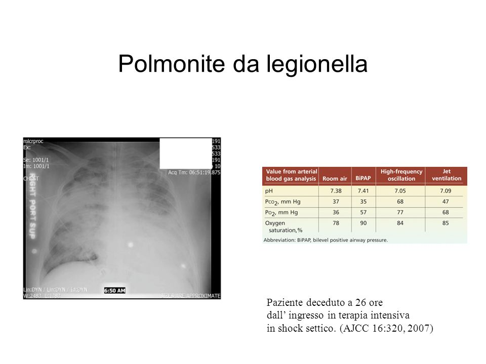 Polmonite da legionella