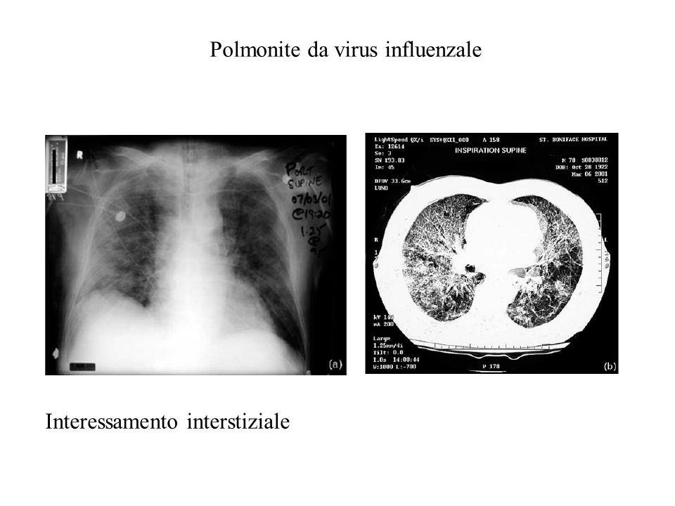 Polmonite da virus influenzale