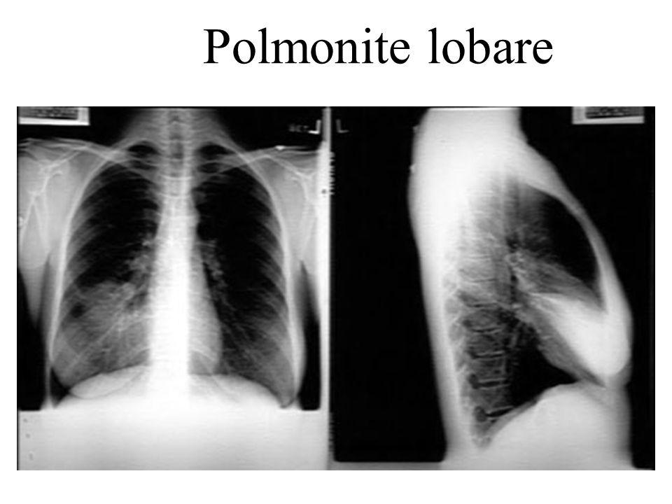 Polmonite lobare