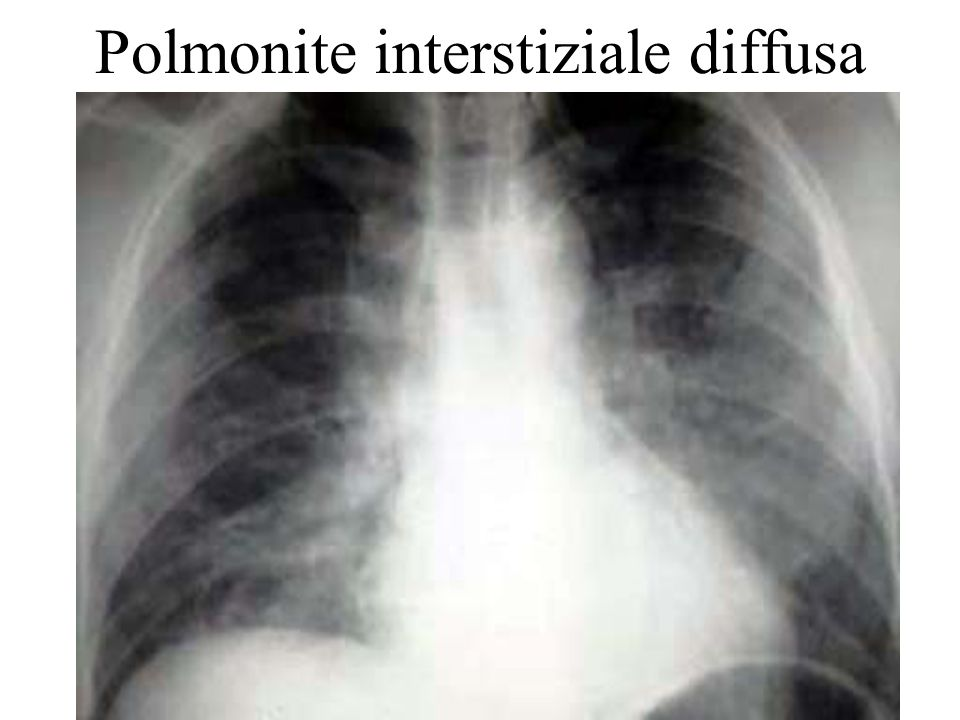 Polmonite interstiziale diffusa