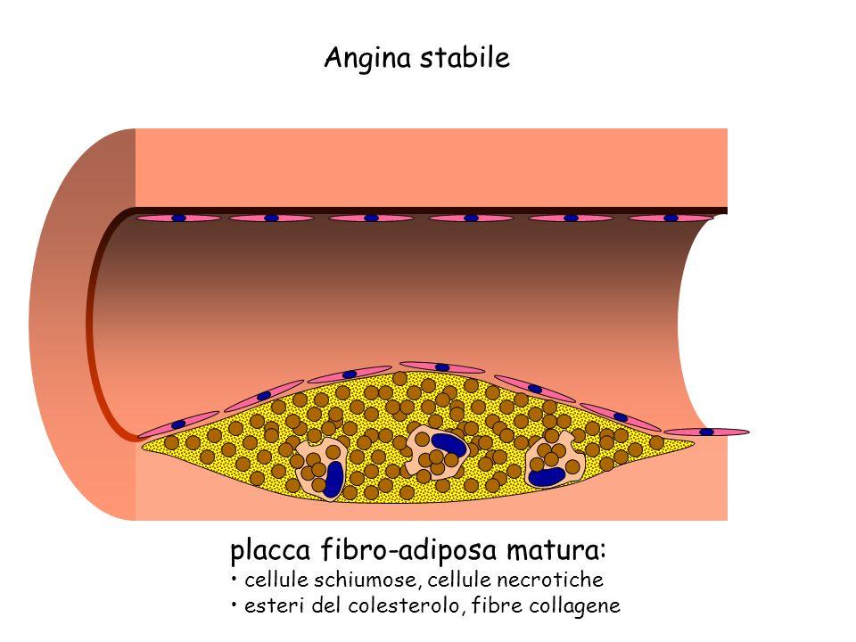 placca fibro-adiposa matura: Angina stabile