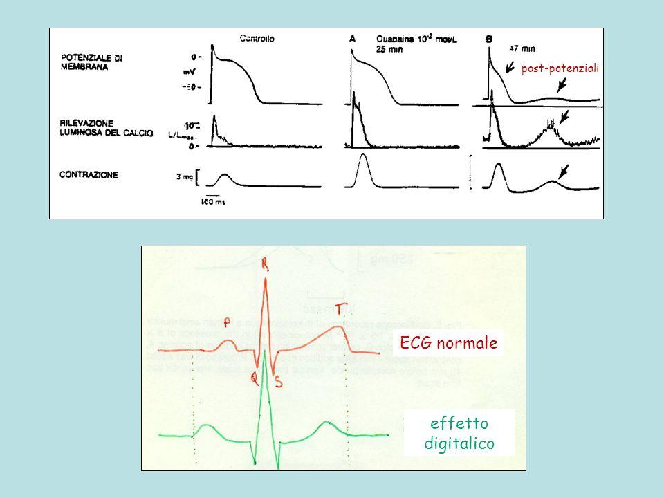 ECG normale effetto digitalico post-potenziali