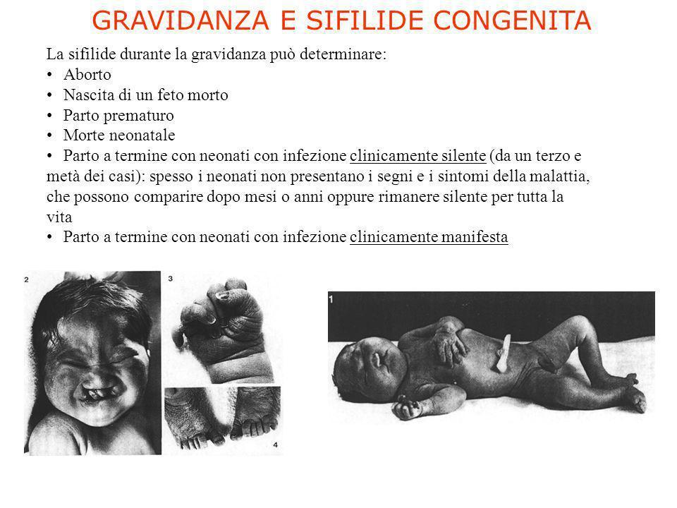 GRAVIDANZA E SIFILIDE CONGENITA