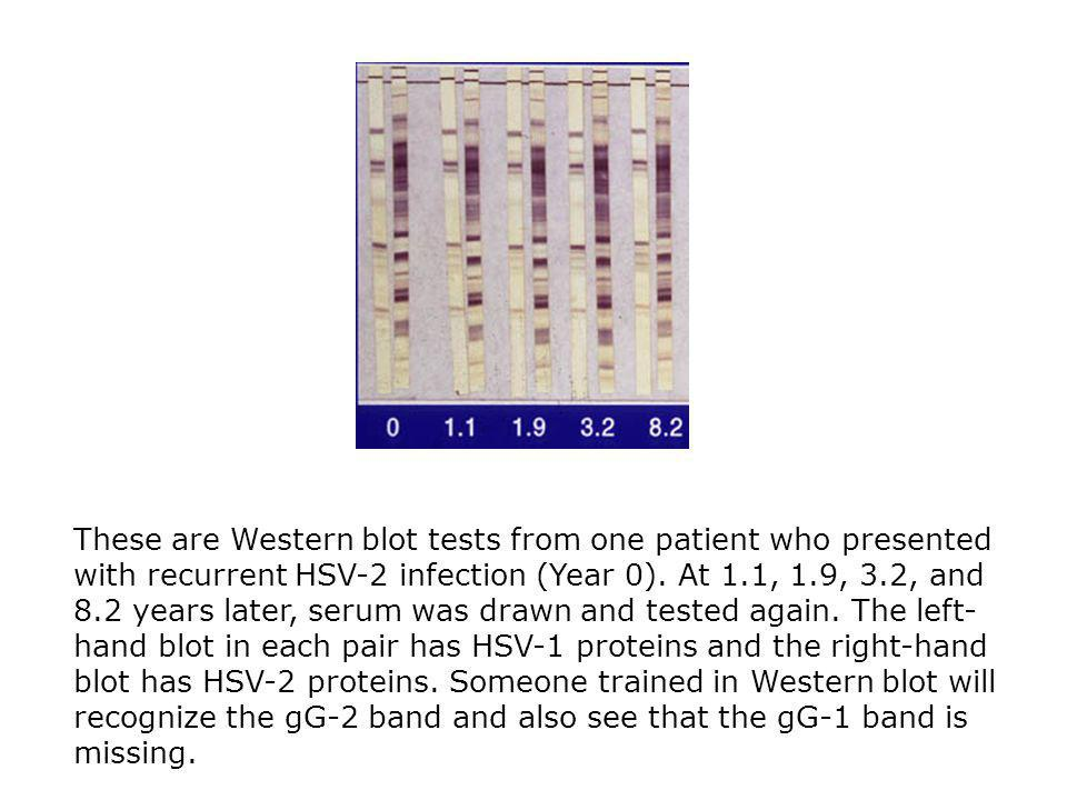 These are Western blot tests from one patient who presented with recurrent HSV-2 infection (Year 0).