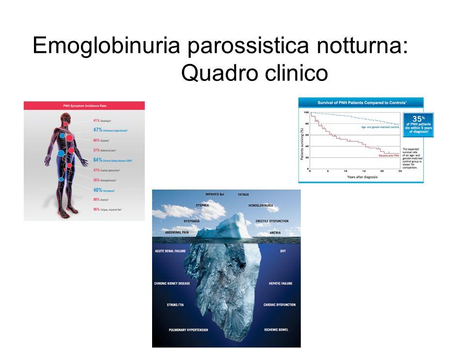 Emoglobinuria parossistica notturna: