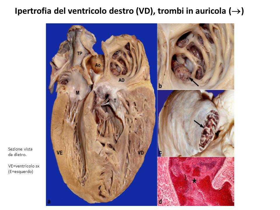 Ipertrofia del ventricolo destro (VD), trombi in auricola ()
