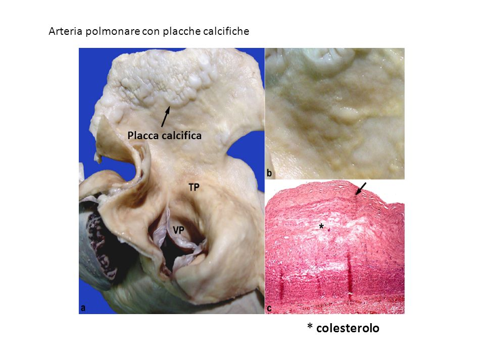 * colesterolo Arteria polmonare con placche calcifiche