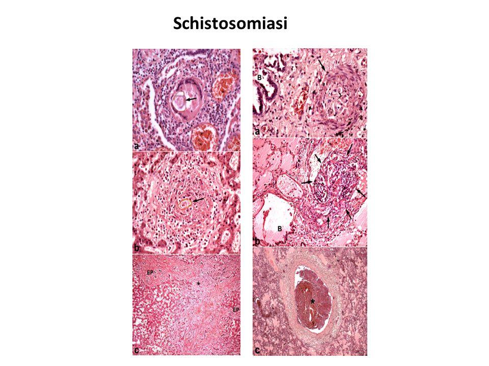 Schistosomiasi